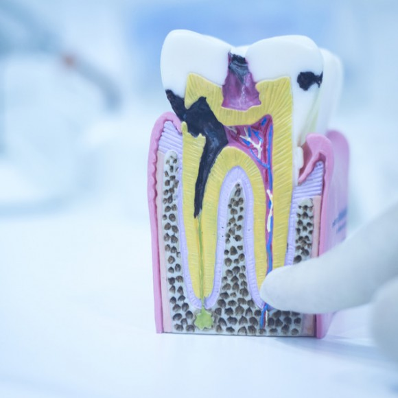 Denists Against Root Canals
